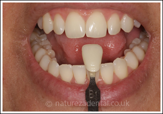 teeth-whitening1-after
