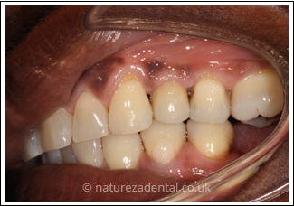 implant-2-after