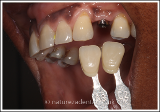 implant-2-before