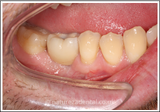 implant-3-after