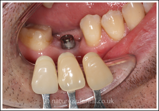 implant-3-before