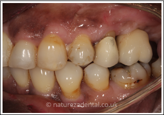implant-4-after