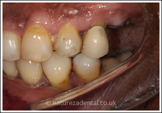 implant-4-before