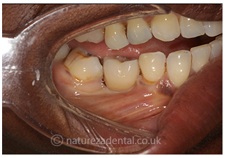 implant-8-after