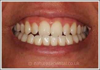 teeth-whitening2-after