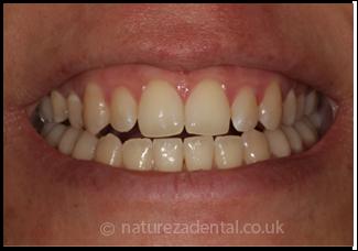 teeth-whitening2-before